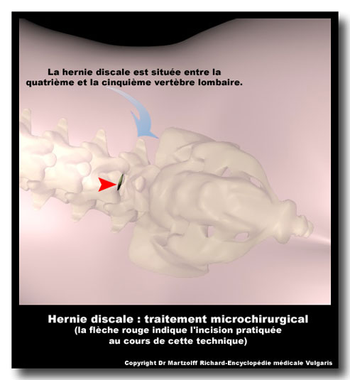 Avantages de la microchirurgie de la hernie discale for Angine traitement maison