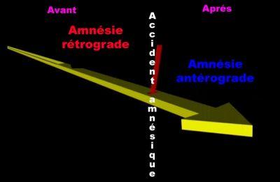 Amnésie rétrograde et antérograde
