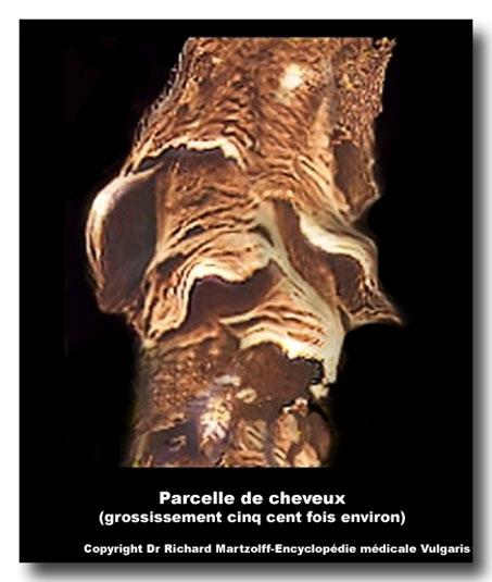 Image, Photo Cheveu vu au microscope électronique, Dermatologie ...