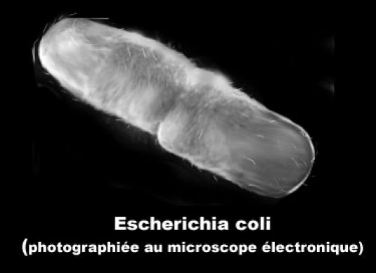 image photo escherichia coli microscope infectieux et parasitologie vulgaris m dical. Black Bedroom Furniture Sets. Home Design Ideas