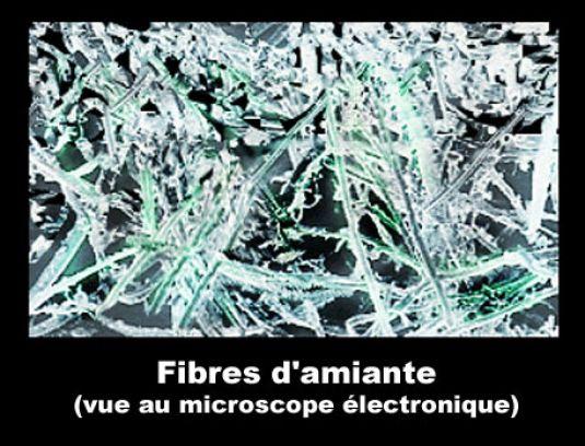 image photo fibres d 39 amiante examin es au microscope chronique mat riel vulgaris m dical. Black Bedroom Furniture Sets. Home Design Ideas
