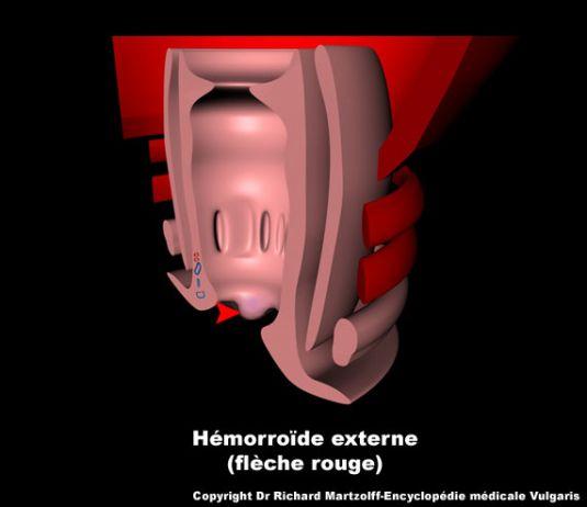 Image, Photo Hémorroide externe., Gastroentérologie