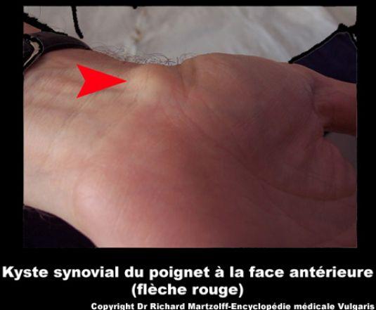 image photo kyste synovial du poignet face ant rieure de la main rhumatologie vulgaris m dical. Black Bedroom Furniture Sets. Home Design Ideas