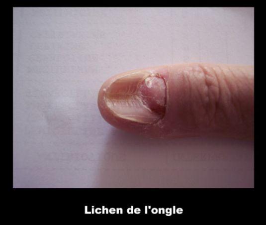 Le traitement de labcès près des ongles