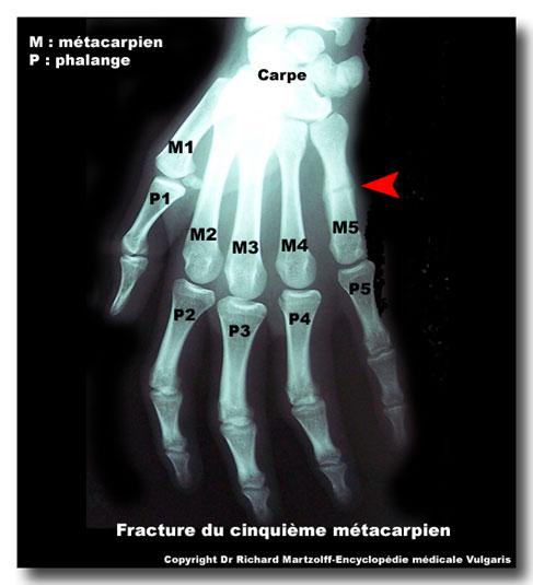 Image Photo M 233 Tacarpe Fracture Imagerie M 233 Dicale