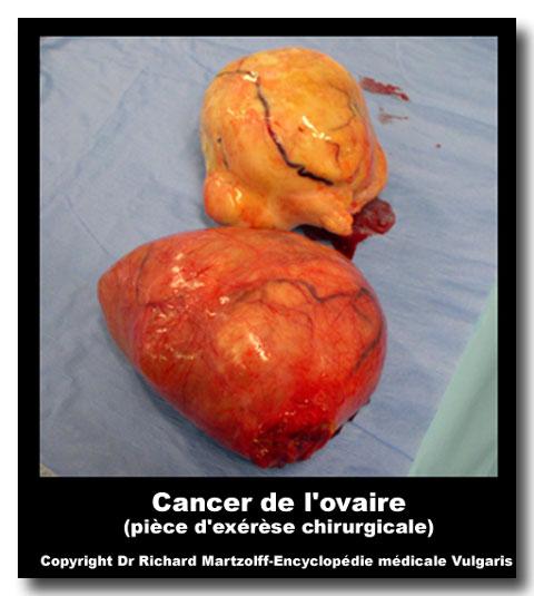 image photo ovaire cancer de l 39 gyn cologie obst trique vulgaris m dical. Black Bedroom Furniture Sets. Home Design Ideas