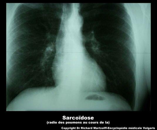 image photo sarco dose radio des poumons infectieux et parasitologie vulgaris m dical. Black Bedroom Furniture Sets. Home Design Ideas