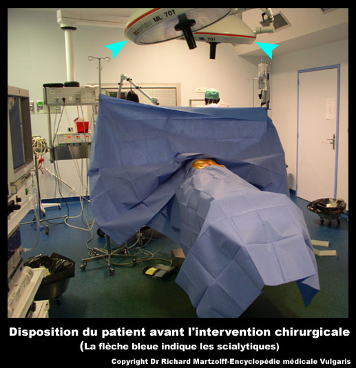 Image photo scialytique mat riel vulgaris m dical for Angine traitement maison