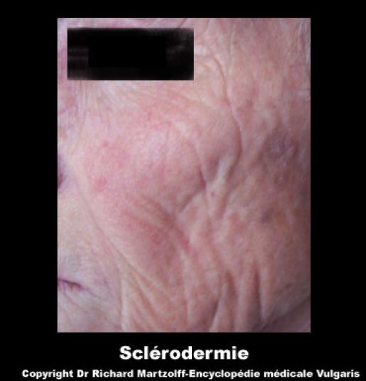 Image photo scl rodermie dermatologie vulgaris m dical for Angine traitement maison