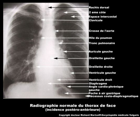 special procedures in radiology pdf