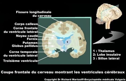 Image Photo Ventricules Disposition Dans Le Cerveau