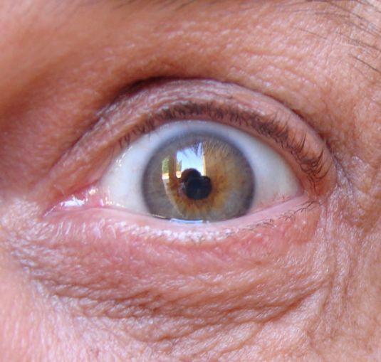une puce lectronique dans l 39 oeil pour surveiller le glaucome vulgaris m dical. Black Bedroom Furniture Sets. Home Design Ideas