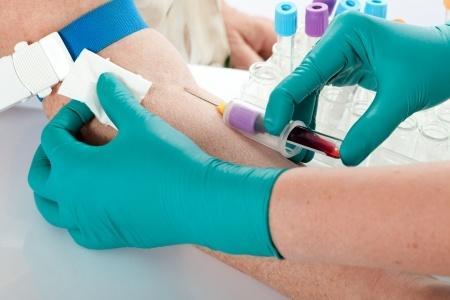 Alzheimer : vers un traitement préventif ?