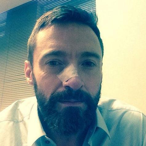 Hugh Jackman : atteint d'un cancer de la peau, il lance un appel à la prudence