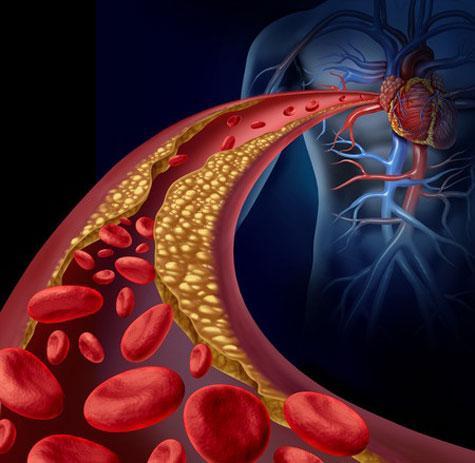 14 astuces naturelles contre le cholestérol
