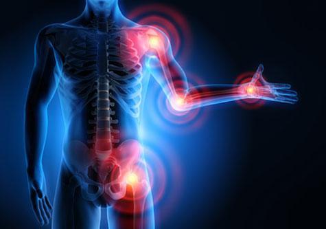 16 astuces naturelles contre les rhumatismes