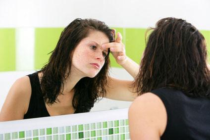 7 astuces naturelles contre l'acné