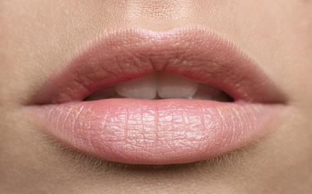 BEAUTE ET SOINS NATURELS - 6 méthodes simples et naturelles pour soigner les lèvres gercées