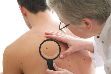 Cancer de la peau : journée de dépistage gratuit partout en France
