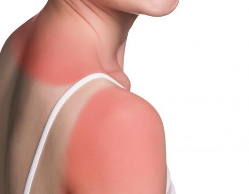 6 remèdes naturels pour apaiser les coups de soleil