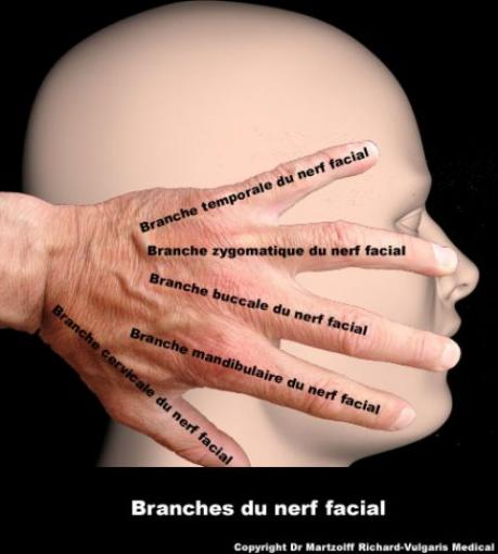Branches du nerf facial (schéma)