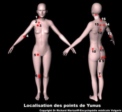 Fibromyalgie : localisation des points de Yunus