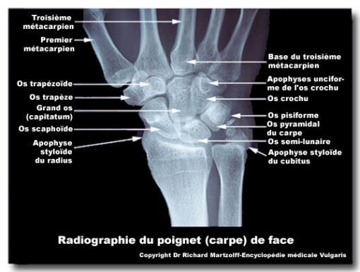 https://www.vulgaris-medical.com/sites/default/files/styles/full_content/public/field/image/images/2012/06/20/poignet-radiographie-du-de-face.jpg