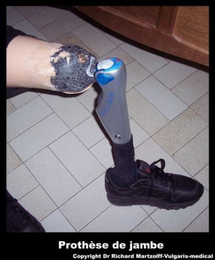 Image, Photo Prothèse de jambe, Matériel