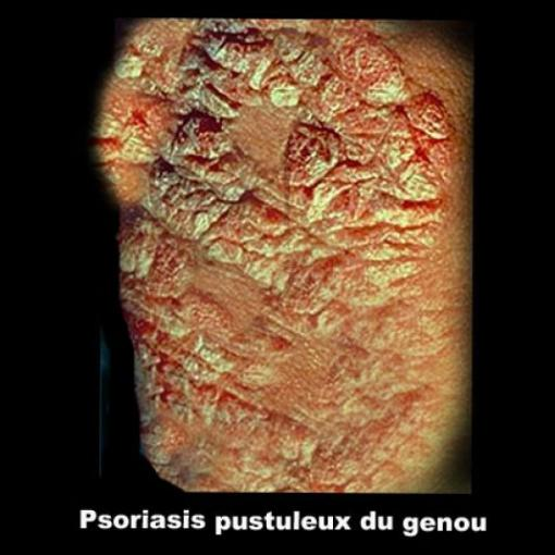 Psoriasis And Cipro