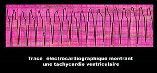 Tachycardie (électrocardiogramme)