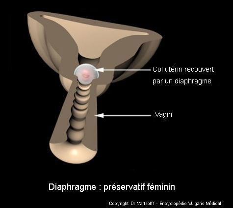 Diaphragme : préservatif féminin (schéma)