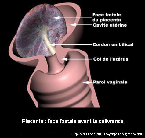Placenta : face fœtale lors de la délivrance (schéma)