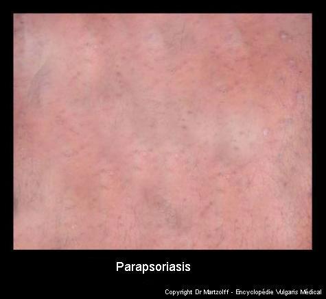 Parapsoriasis (photo)