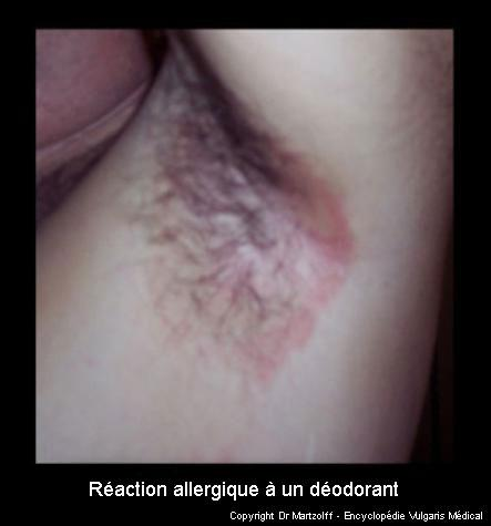 Réaction allergique à un déodorant (photo)