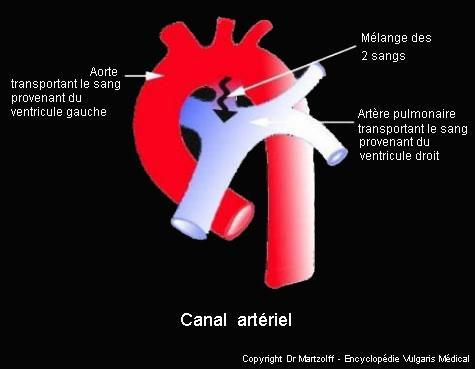 Canal artériel (schéma)