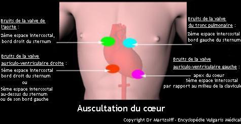 Zones d'auscultation du cœur (schéma)