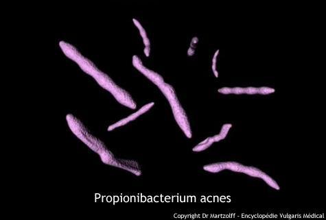 Propionibacterium acnes (schéma)