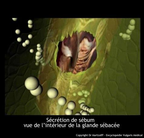 Sécrétion du sébum vue de l'intérieur de la glande sébacée (schéma)