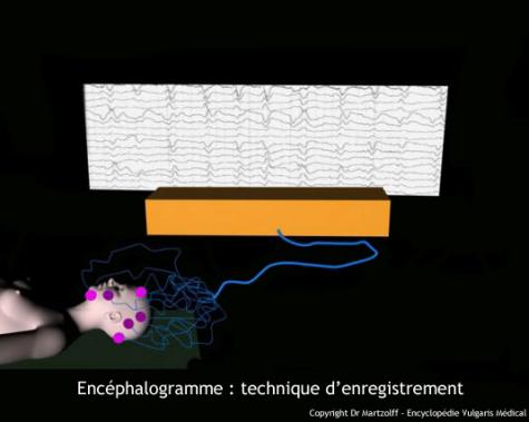 Électroencéphalogramme : technique (schéma)