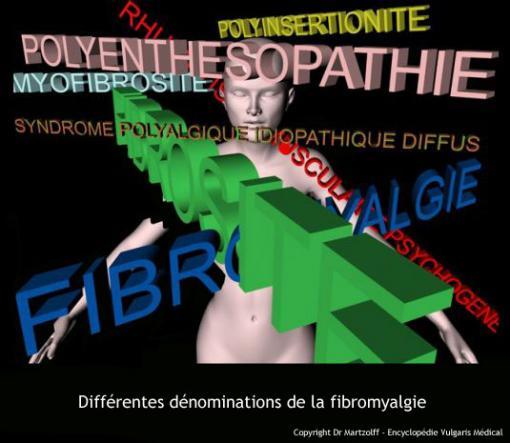 Différentes dénominations de la fibromyalgie