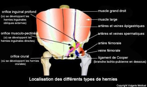 Localisation des différents types de hernies
