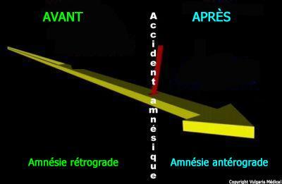 Amnésie rétrograde et amnésie antérograde