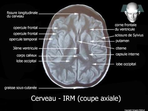 Cerveau - I.R.M  (coupe axiale)