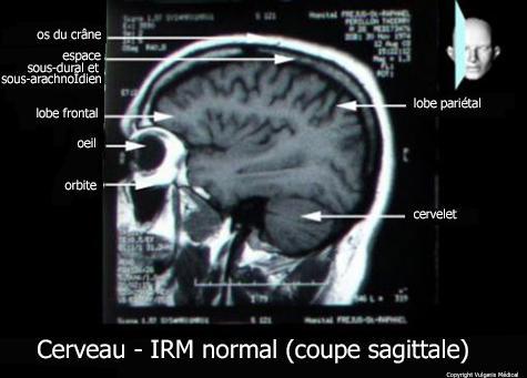 Cerveau  - IRM (coupe sagittale)