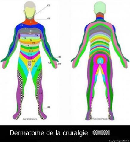 Dermatome de la cruralgie