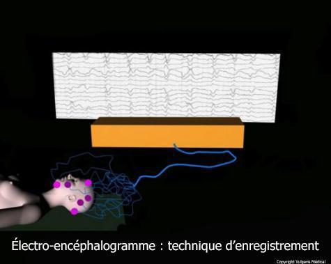 Électroencéphalogramme : technique d'enregistrement