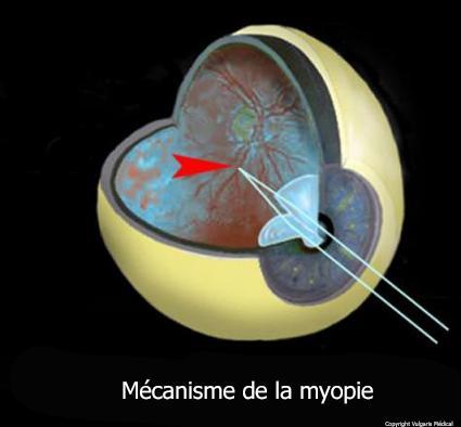 Myopie - mécanisme (schéma)