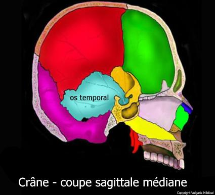 Crâne : coupe sagittale localisant l'os temporal (schéma)