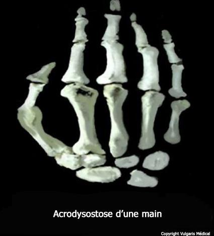 Acrodysostose de la main