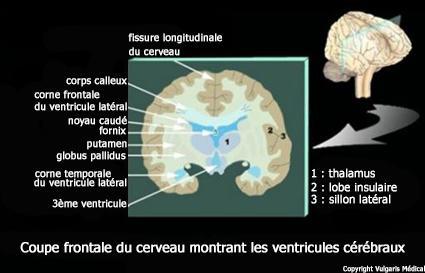 Ventricules cérébraux : disposition dans le cerveau (schéma)